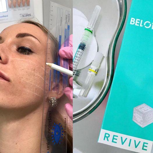 Belotero Revive injectable voor de jonge huid