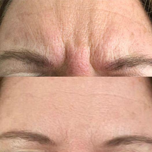 botox voor en na voorhoofd fronsrimpel